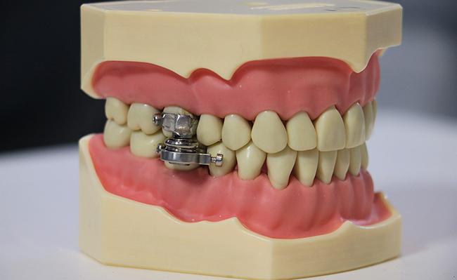 Prototipo del 'DentalSlim Diet Control'